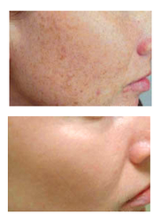 photorejuvenation by Riva Dermatology