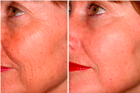 before-after-laser-treatment