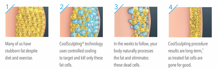 coolsculpt-freezing-fat-process